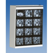 Wolf X-Ray MG-7 Series X-Ray Viewbox