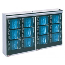Wolf X-Ray MG-7 Series 2 Bank X-Ray Viewbox